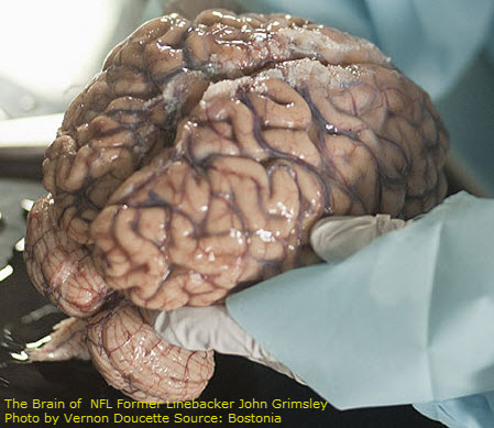 NFL Brain Injury