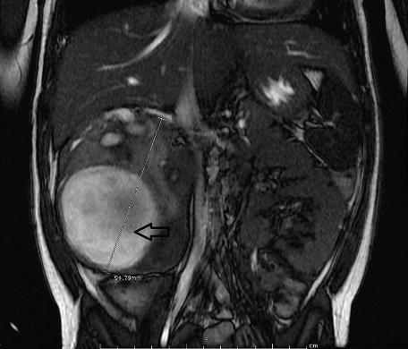 renal mass