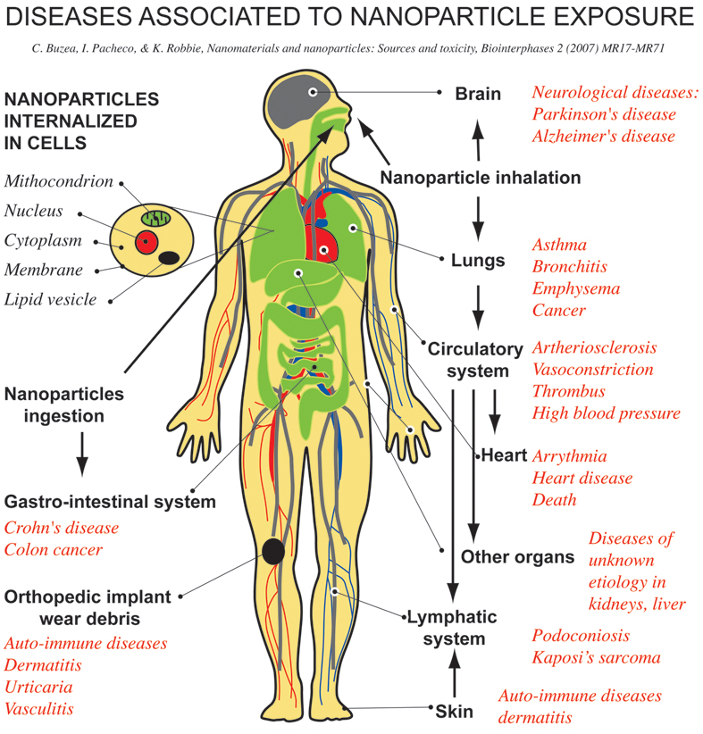 diseases associated to nanoparticle exposure