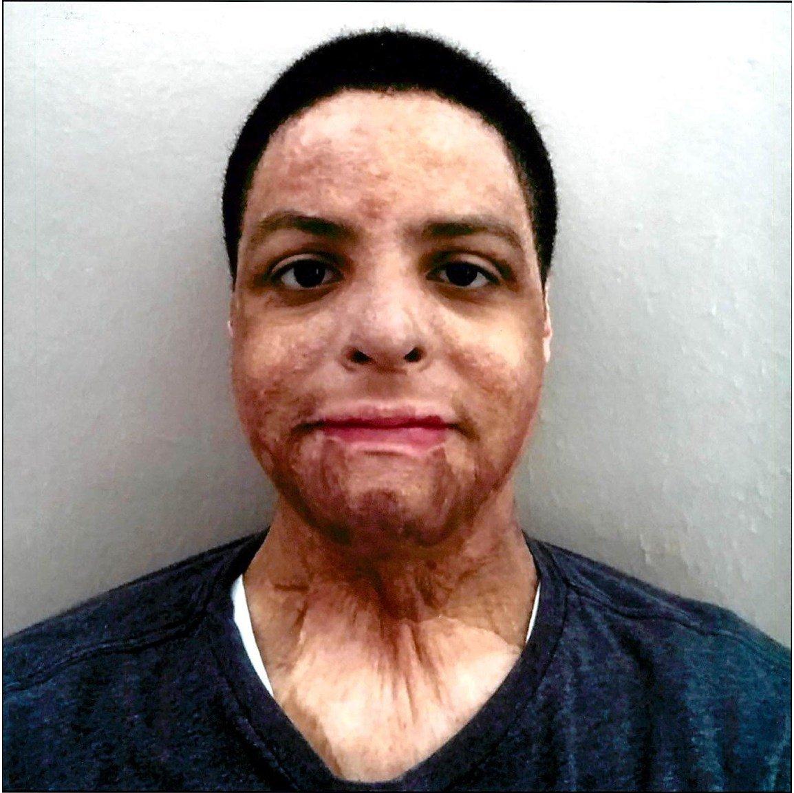 Burn Injury victim Alonzo Yanes
