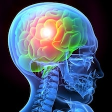 traumatic-brain-injury-picture-1