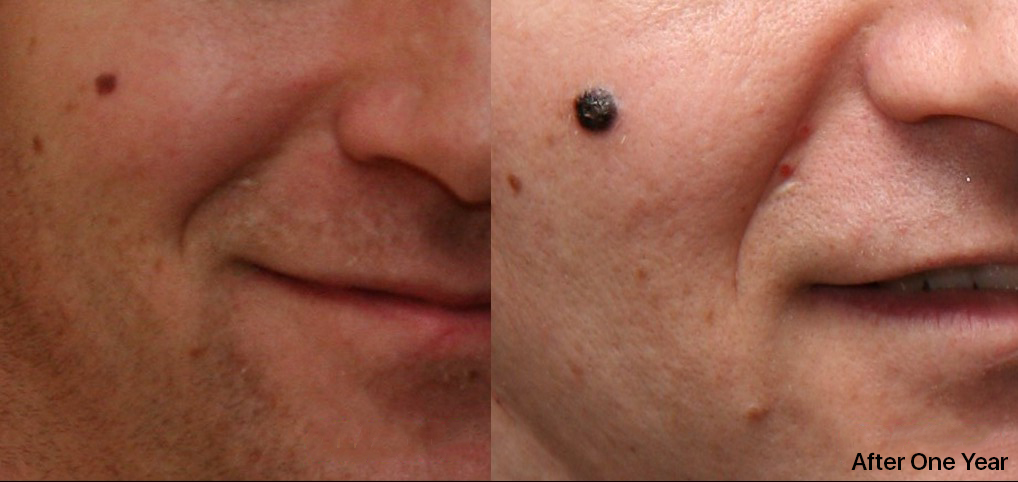 elanoma_Growth_over_14_Months