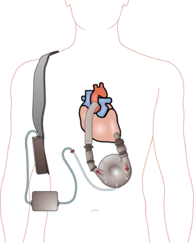 Ventricular_assist_device (1)